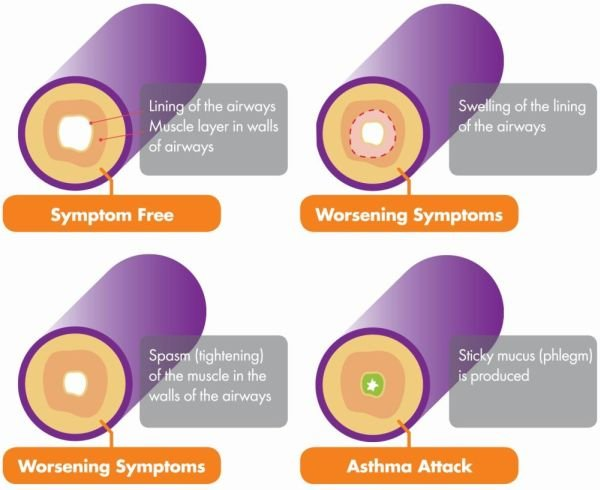 How asthma affects the airways